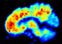 PET image of brain using PIB