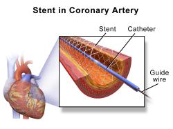 Stent in human coronary artery. (Wikimedia, Blausen gallery 2014)