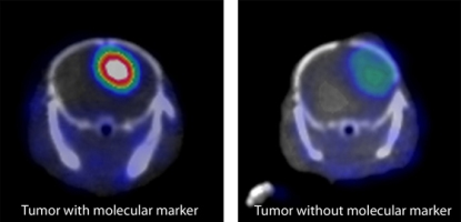 Images by Weibo Cai/Department of Radiology, University of Wisconsin-Madison. On the left, the antibody is linked to a label that shows up in a PET scanner, and the aggressive cancer shines brightly. On the right, a similar cancer without the molecular marker is less obvious.