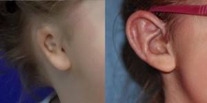 Microtia ear before and after surgery (Courtesy of Lewin)